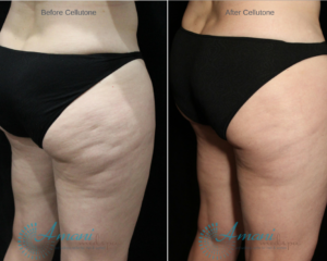 A person who used body contouring and skin tightening services in Brandon and Valrico FL.