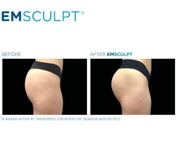 Emsculpt Results