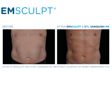 Emsculpt_PIC_FB-Social-media-plan_191002_ENUS100