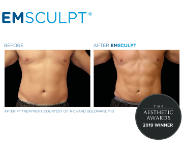 Emsculpt_PIC_FB-Social-media-plan_191022_ENUS100